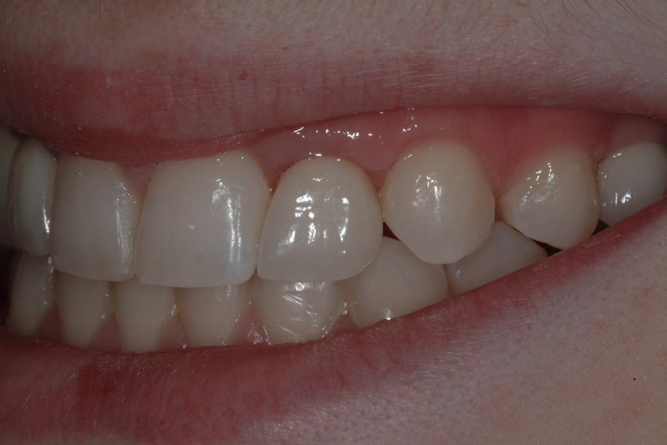 A patient's teeth after implant placement