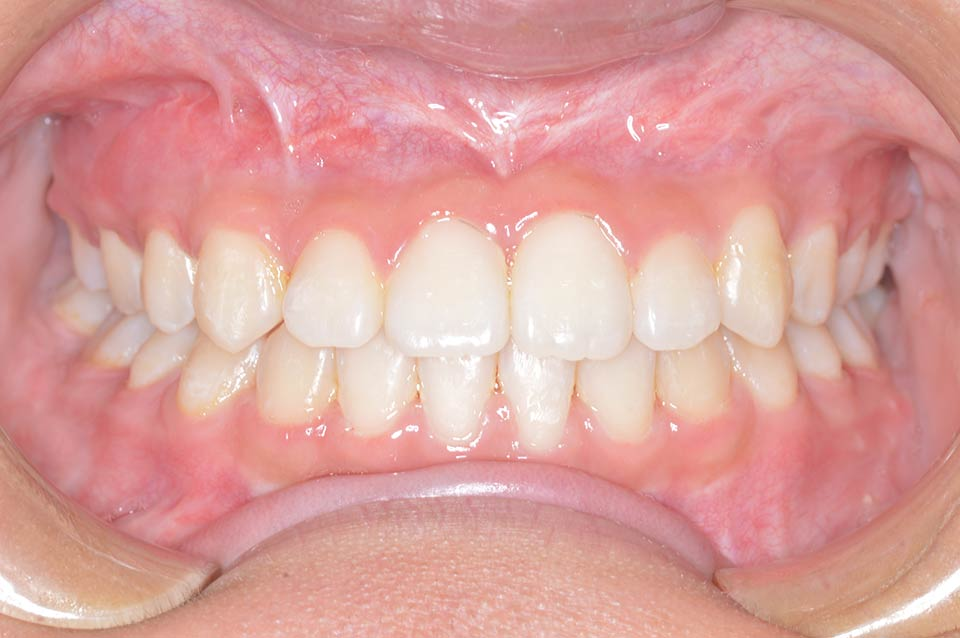 After image of patient's smile