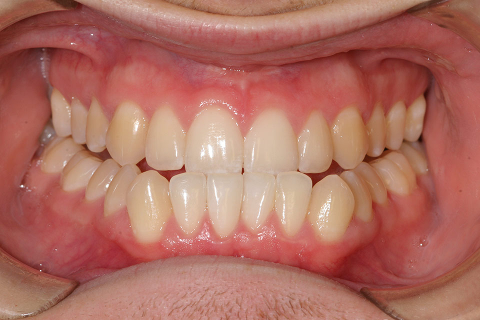 Before image of patient's smile