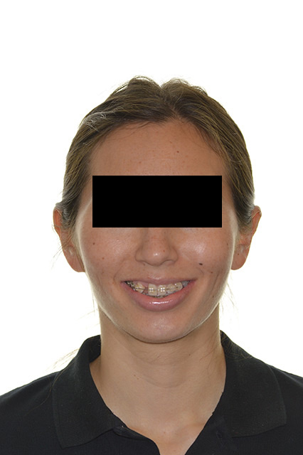 Before image of patient's face