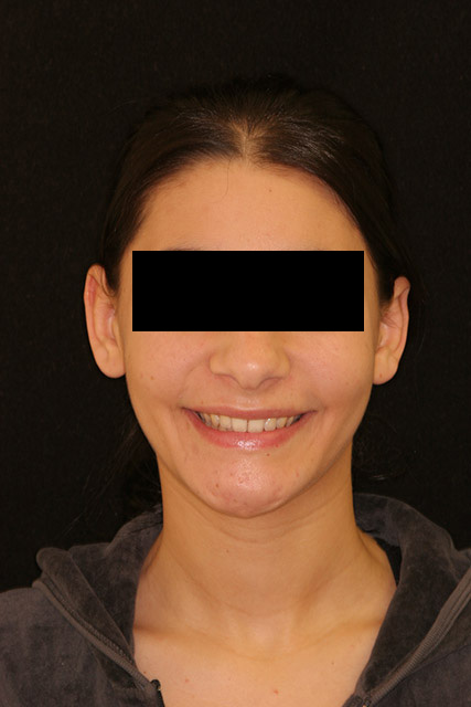 A patient's face after orthognathic surgery