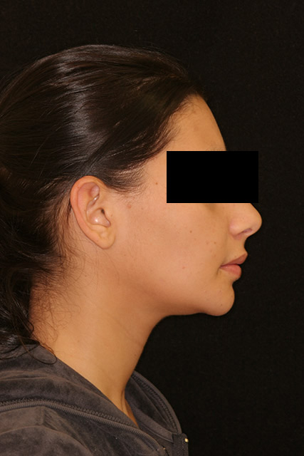 A patient's side face after orthognathic surgery