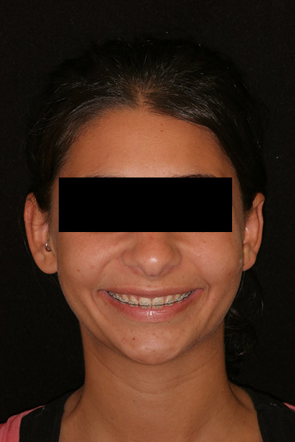 A patient's face with braces before orthognathic surgery