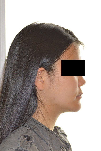 After image of patient's side face