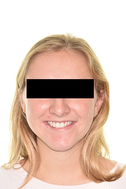 7 Year post treatment patient's smile
