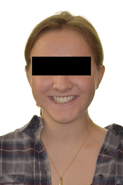 After image of patient's face
