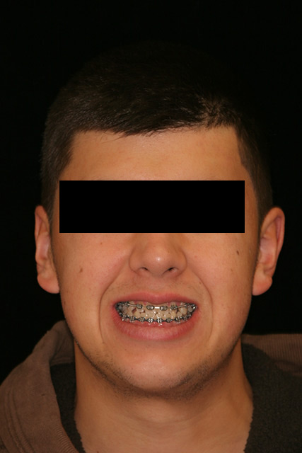 Patient's smile during Treatment at age 20