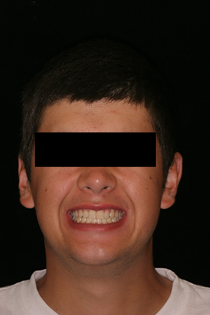 Final results of patient's smile at age 21