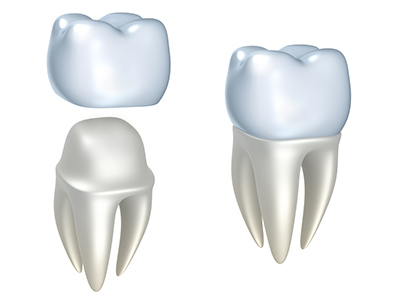 When Should You Ask About Getting a Dental Crown?